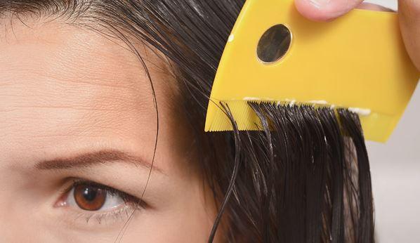 Быстрые и наиболее эффективные способы избавления от вшей и гнид